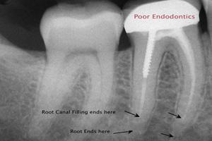 Root Xray case 02