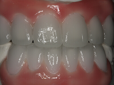 A Close-up of the Wax Impression of the Smile Desired at Briglia Dental Group in West Chester, PA Area